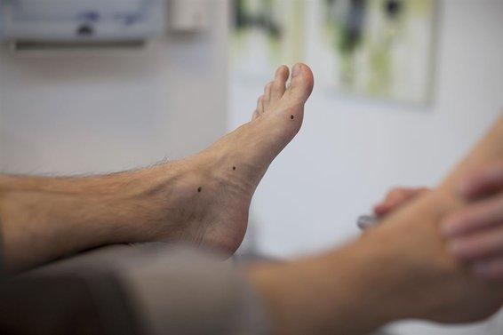 5675c6589b1 Hudens naturlige reaktion på en overbelastning er, at den begynder at  fortykke sig. Derved opstår der hård hud, som kan blive så voldsom, at den  sidder som ...